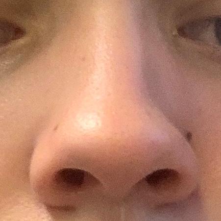Ist meine Nase unschön (schief asymmetrisch)? (Gesundheit