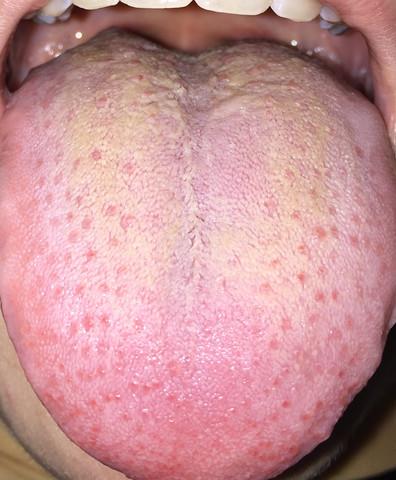 Ist meine Zunge normal (Achtung Zungenbild)? (krank)