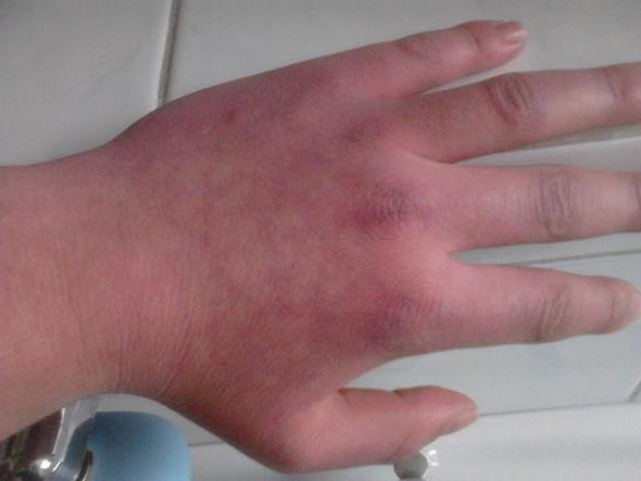 Blaue Hände Bei Kälte