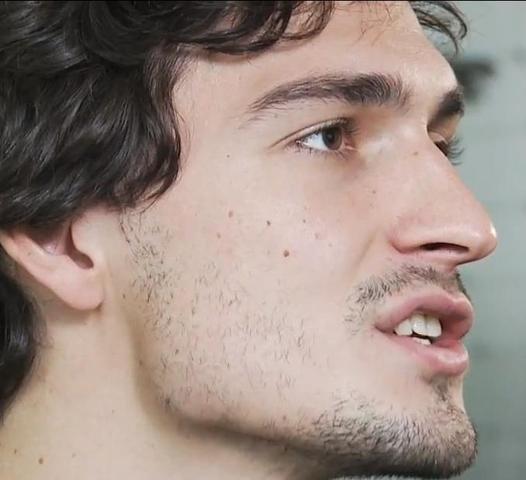 Das beste von Kein Bartwuchs An Den Wangen