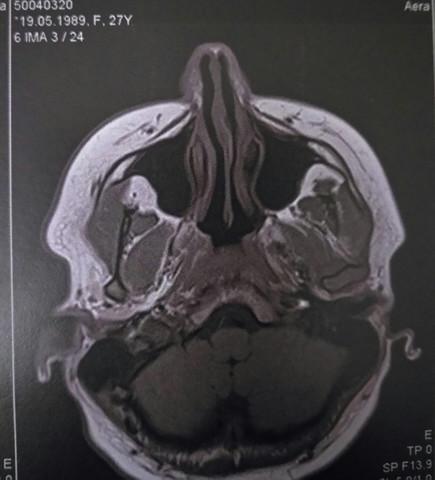 Bild eins - (Schwindel, Kopf MRT)