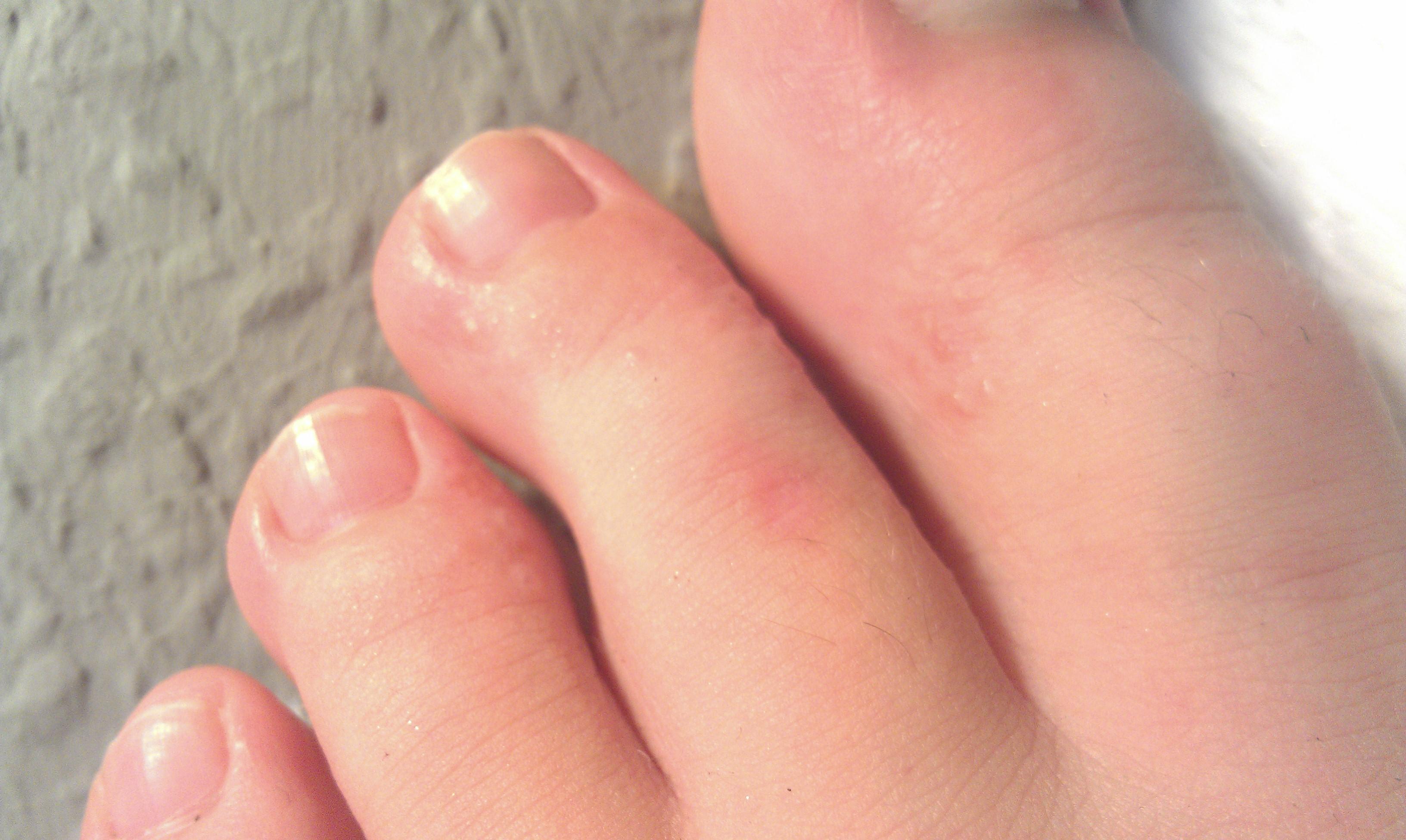 Die dunkle Pigmentation der Haut auf den Beinen