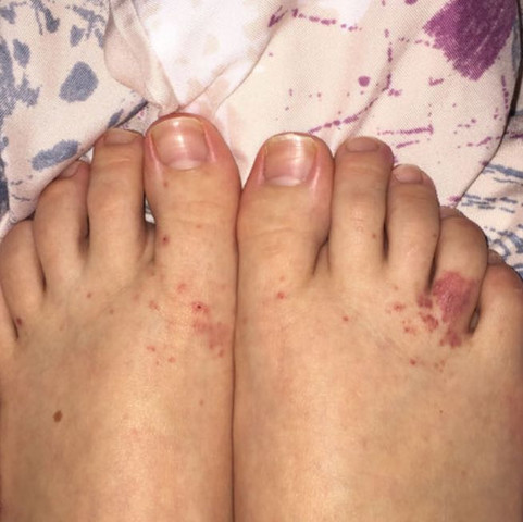 Ausschlag An Den Zehen