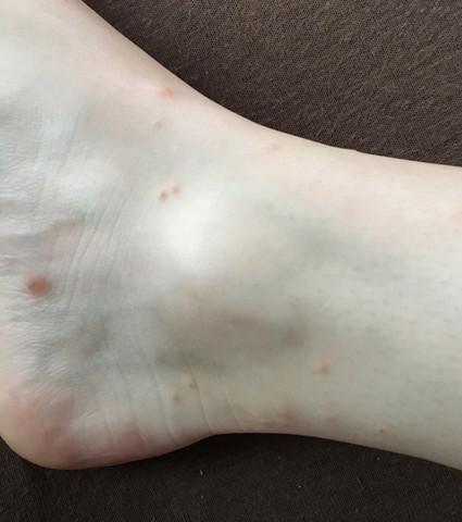 Ausschlag Beinbereich - (Gesundheit, Krankheit, Haut)