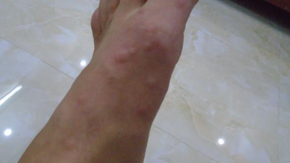 Juckender Hautausschlag Mucken Bettwanzen Flohe Kratze Oder