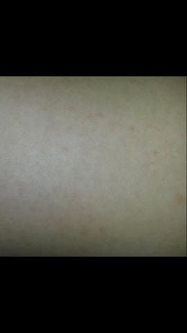 - (Haut, Juckreiz, Dermatologie)