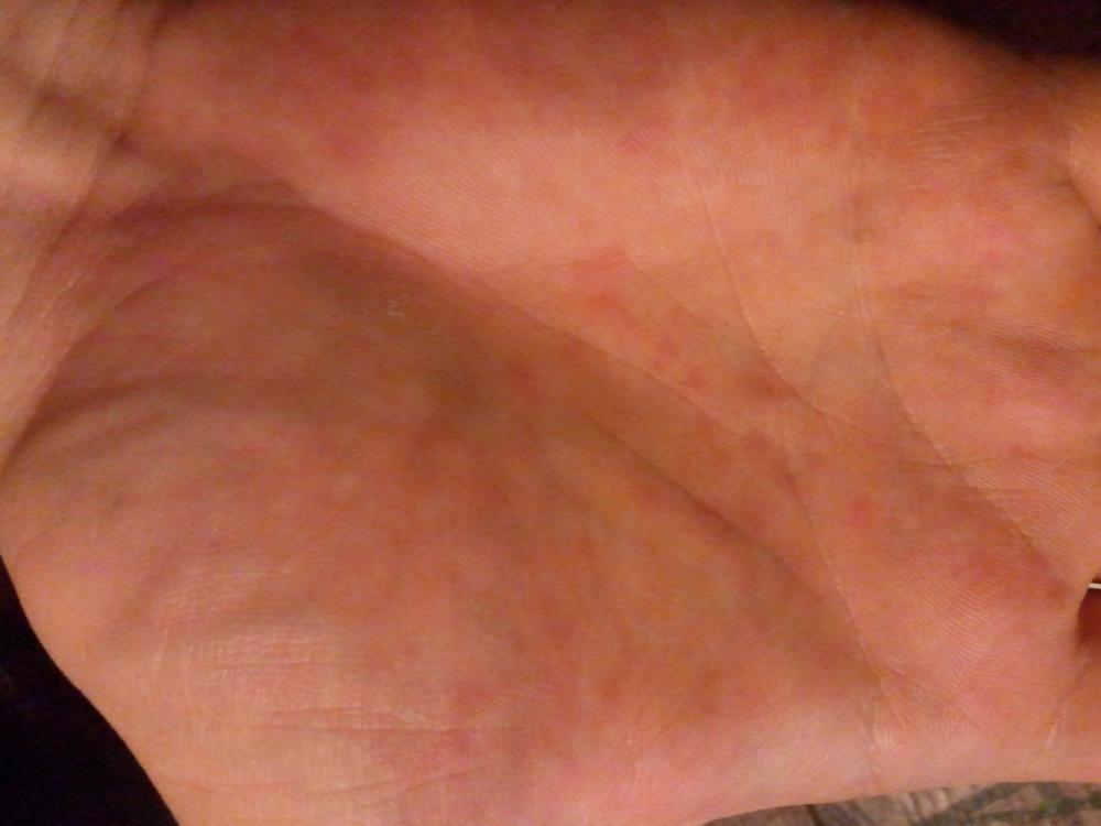 Jucken In Der Handfläche