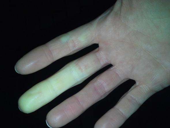 Meine Hand - (Krankheit, Körperliches)