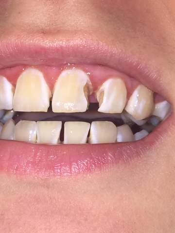 Tun zahnfüllung rausgefallen was Zahnärzte Dr.