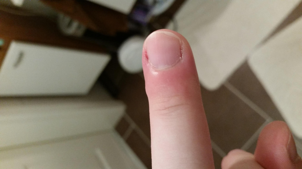 Beule am Finger - (Schmerzen, Arzt, EntzÜndung)
