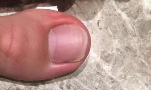 Kann ich den eingewachsenen Nagel noch abschneiden?