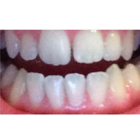 Kann ich meine Zähne schleifen lassen? (Arzt, Zahnarzt, zacken)