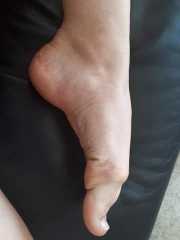 Kann ich mit diesem Fußspann beim Ballett auf die Spitze gehen?