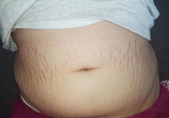 Fettschürze abnehmen Fettschürze vs