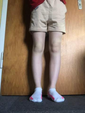 Kann ich mit meiner Figur kurze Hose tragen?