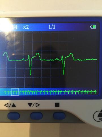 Ekg Rot unter clavicula rechts, Gelb Herzspitze, Grün abdomen links - (Medizin, Arzt, Krankheit)