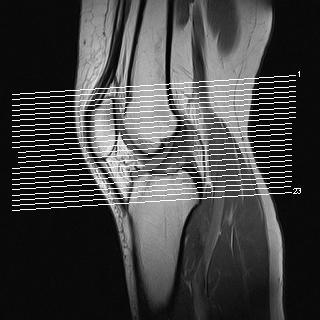 linkes Knie - (Gesundheit, Knie, orthopäde)