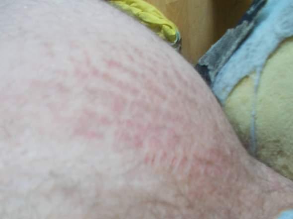 Kann jemand sagen was das ist? Es tut zwischen den Beinen reiben?