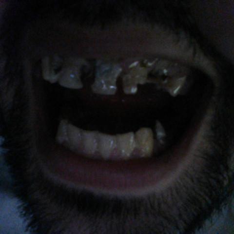 Foto - (Gesundheit, Angst, Zähne)