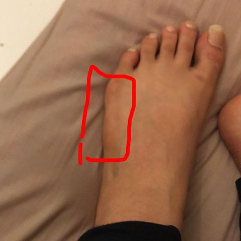 Kann man breite Füße irgendwie schmaler kriegen?