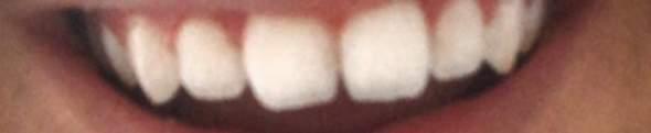 Kann man diese kleine Zahnlücke  schließen lassen (Zähne in der Mitte) wieviel kostet es und geht das überhaupt, ich finde nichts dazu im internet?
