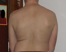 - (Gesundheit, Rücken)