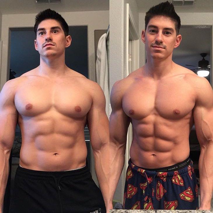 Kann man mit Gynäkomastie Muskeln aufbauen und hat dieser
