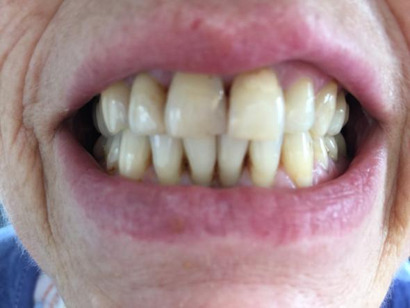Vorher - (Zahnarzt, Zahnmedizin, Zahnersatz)