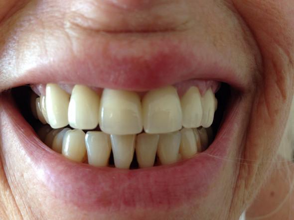 Nachher - (Zahnarzt, Zahnmedizin, Zahnersatz)