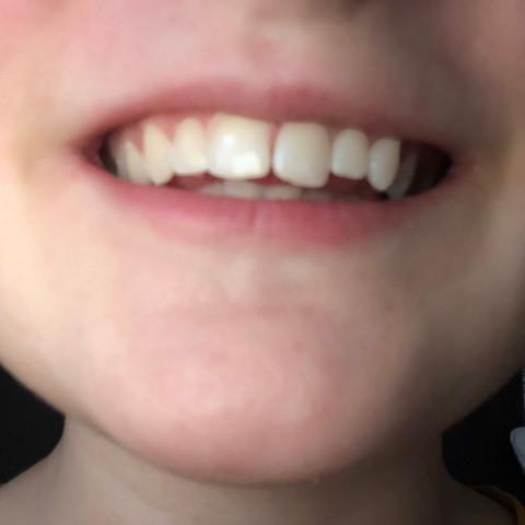 Kann man seine Zähne feilen?