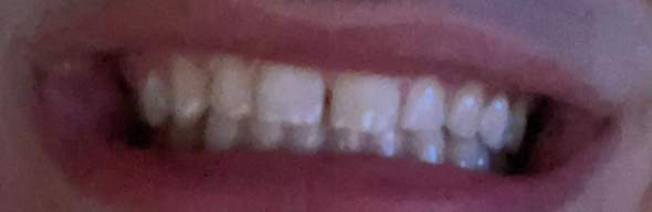Kann man so eine Zahnlücke kaschieren?