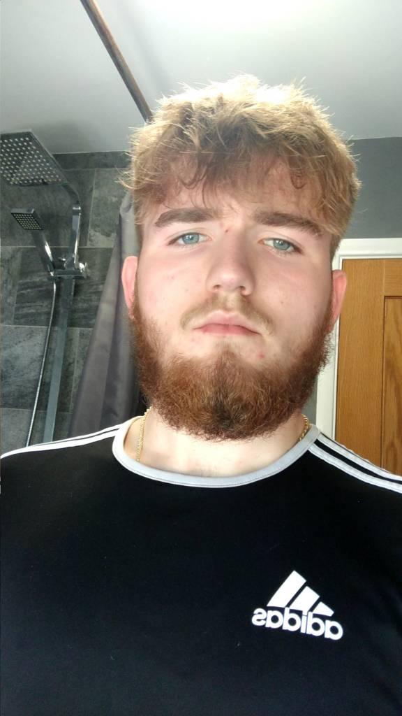 Kann mein Bartwuchs noch dichter werden? (vollbart)