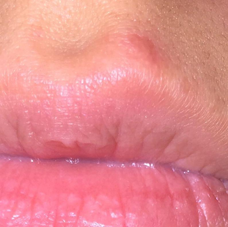Kann mir einer sagen ob das Herpes ist? (Krankheit, Küssen