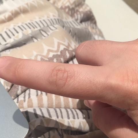Das ist das Gelenk,welches schmerzt und knackt - (Schmerzen, Arzt, Finger)