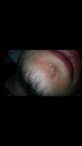Rötung unter dem Mund - (Haut, rötung)