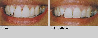 Können Zähne Nachwachsen