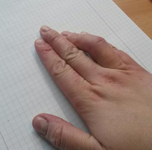 Kapselriss Im Finger Oder Bruch Wie Lange Bleibt Der Finger Krumm