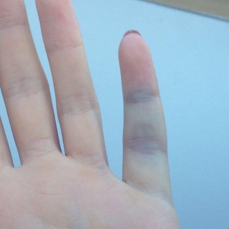 Blauer Finger  - (Finger, Bruch, Gelenke)