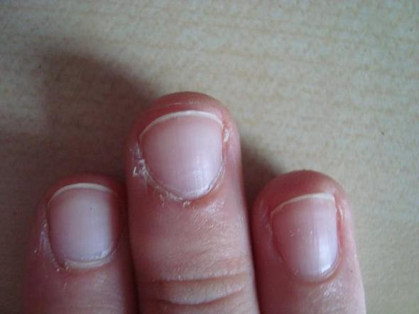 Bild 1 - (Kosmetik, Finger, trocken)