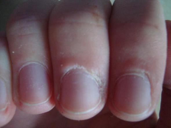 Fingerkuppen eingerissen