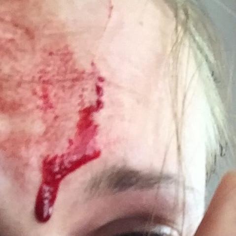 Starke Blutung hörte aber sofort wieder auf  - (Medizin, Arzt, Katze)