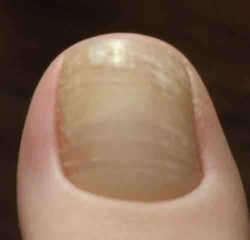 Wie schaut nagelpilz aus