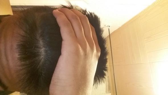 Keine Glatze Haare Frisur