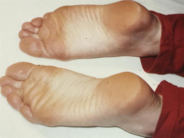 Keine Plattfüße? (Gesundheit, Füße, Orthopäde)