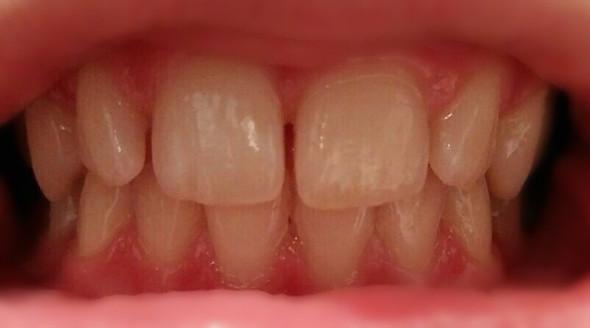 Meine Zähne - (Zähne, Zahnspange)