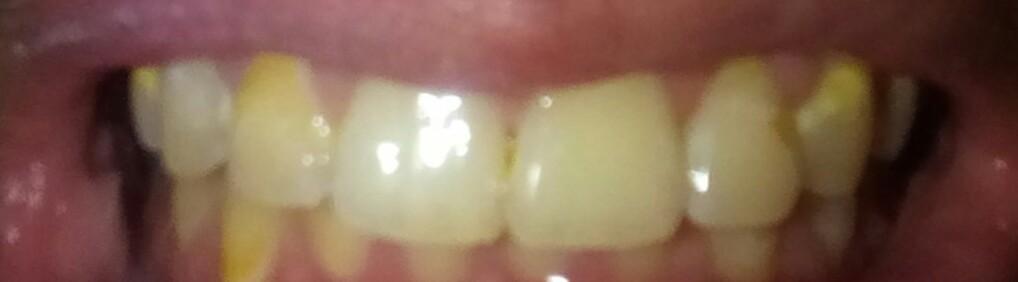Gelbe Flecken Auf Den Zähnen