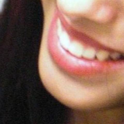 Vorher  - (Zähne, Kieferorthopäde)