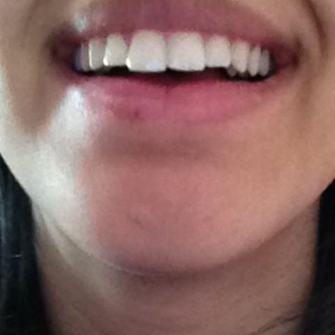 Nachher  - (Zähne, Kieferorthopäde)