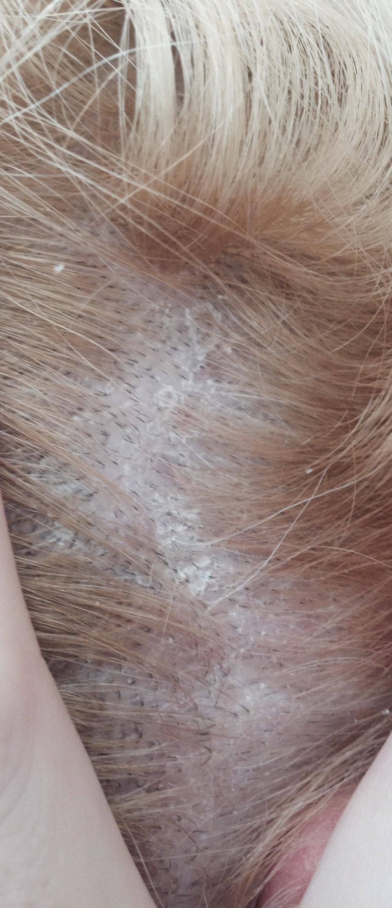 Klebrige Stellen/Schuppen auf der Kopfhaut
