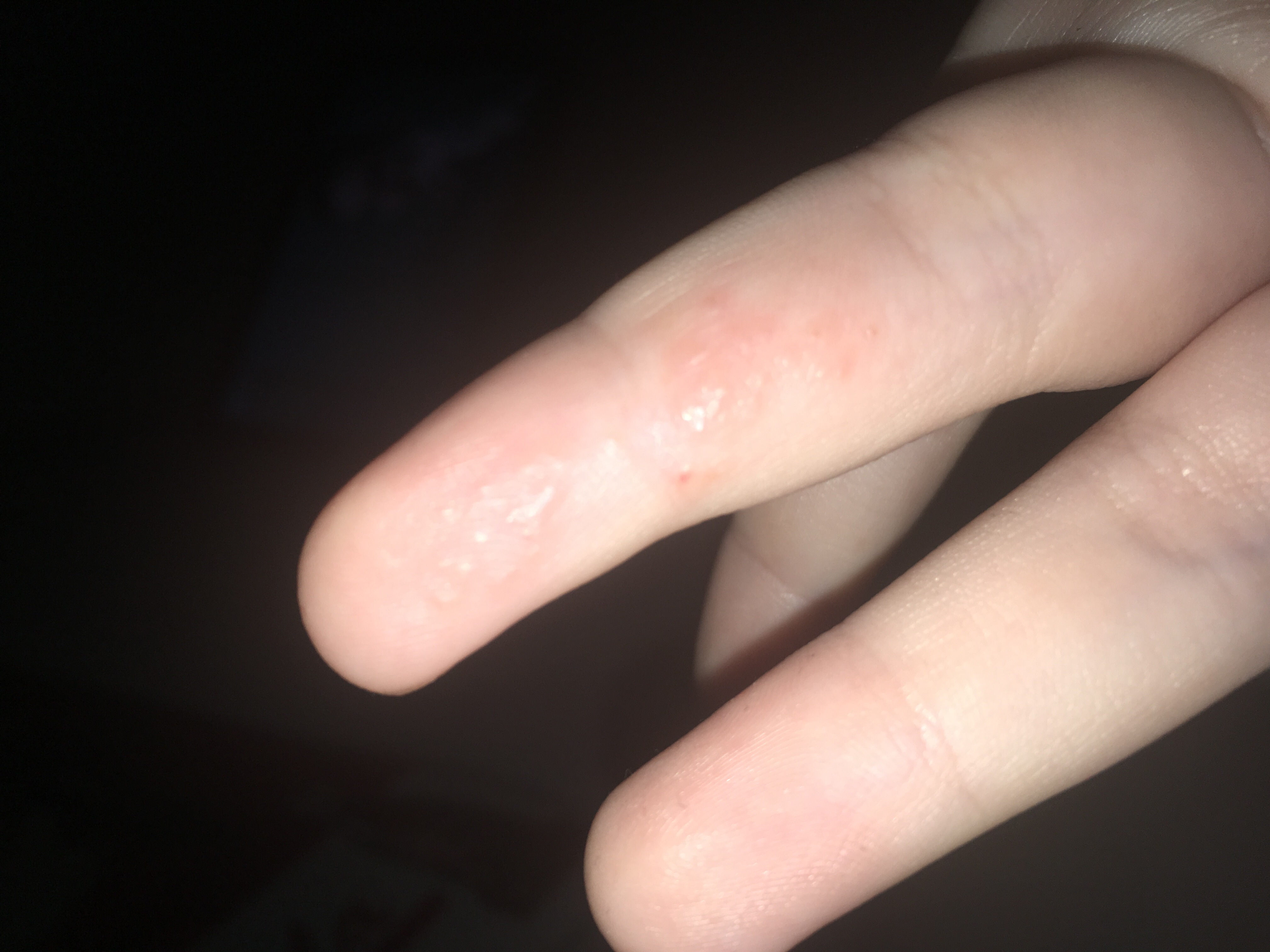 Mückenstich Mit Flüssigkeit Gefüllt